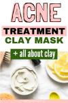 diy clay face mask acne treatment